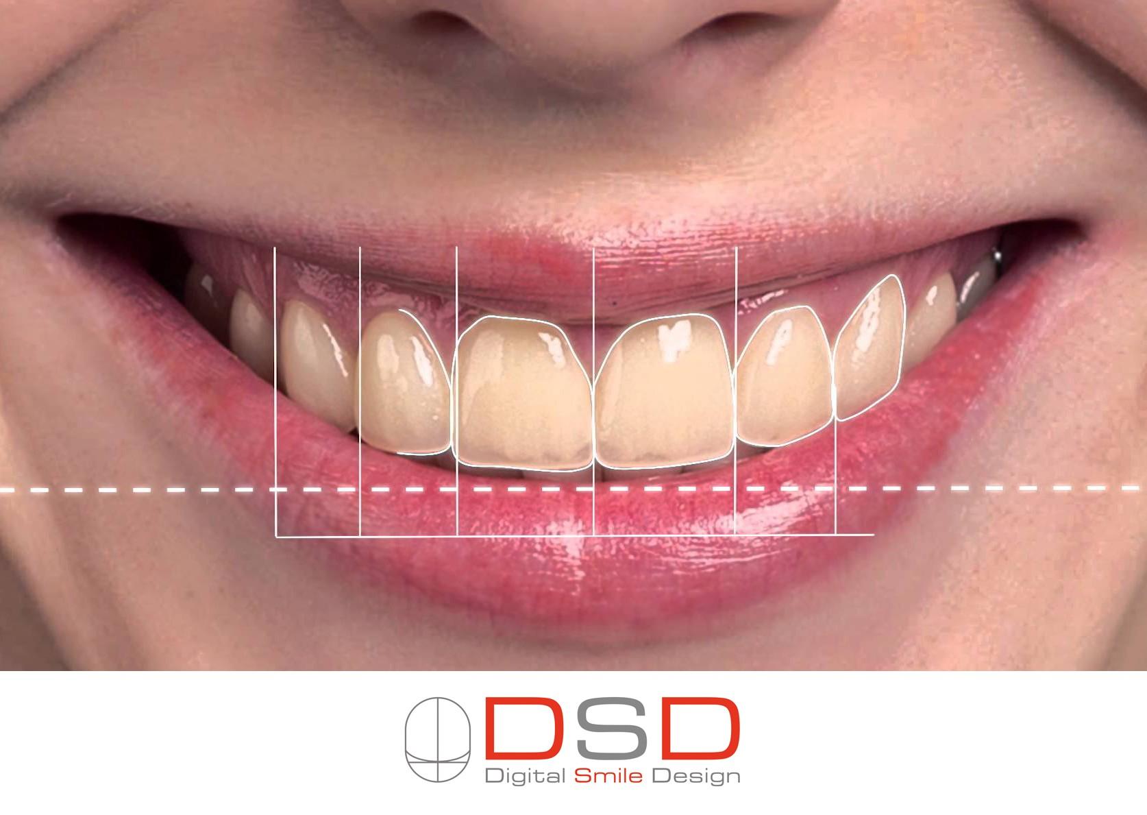 עיצוב החיוך בשיטת Digital Smile Design