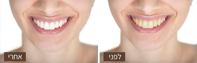 הלבנת שיניים לפני / אחרי